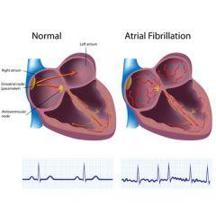 NUR108 - Atrial Fibrillation (1.5 HR)