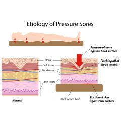 NUR187 - Pressure Ulcers: Etiology (2.5 HR)