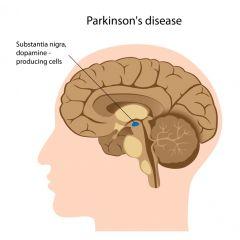 NUR113 - Parkinson's Disease (2.5 HR)