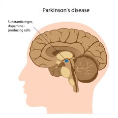 CNA201 - CMA: Parkinson's Disease (2.0 HR)