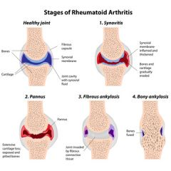 CNA200 - CMA: Rheumatoid Arthritis (1.0 HR)