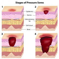 NUR182 - Pressure Ulcers (1.0 HR)